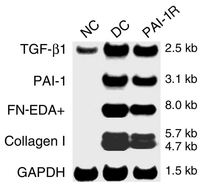 Effects of PAI-1R treatment on glomerular mRNA expression in anti–thy-1 ...