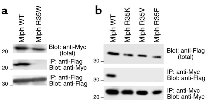 Association of Mlph mutant proteins with Rab27a. (a) MLPH mutation in PA...