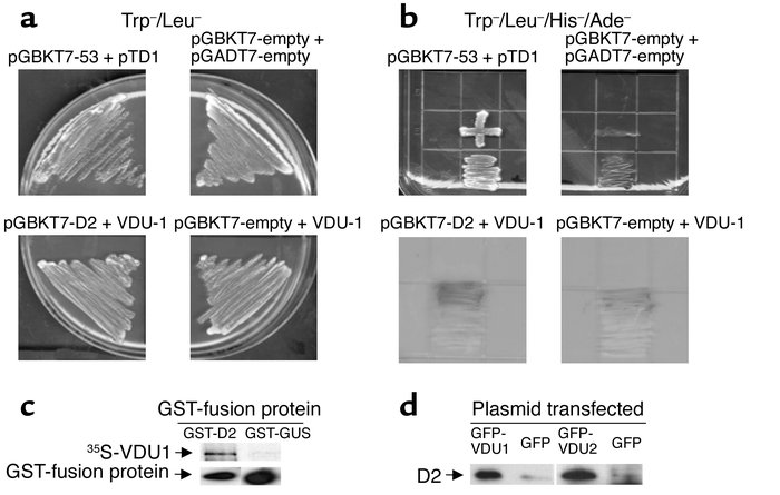 Yeast two-hybrid mating for pGBKT7-D2 and VDU1-expressing clone. (a and ...