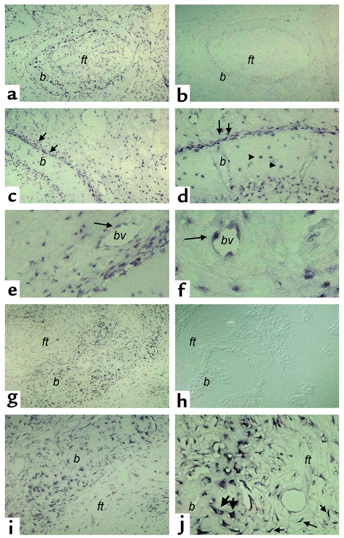 In situ hybridization analysis of FGF-23 expression in FD of bone. Biops...