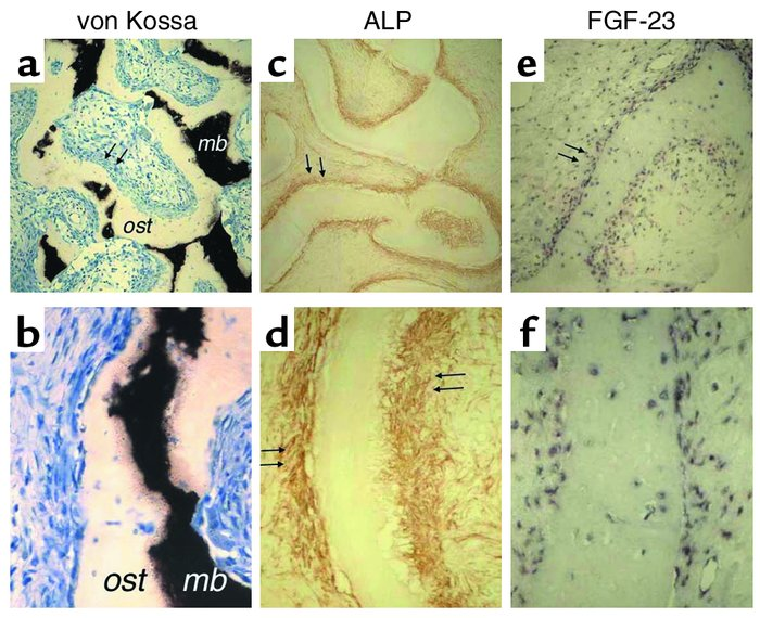 Immunohistochemical characterization of FGF-23–producing cells in FD. Un...