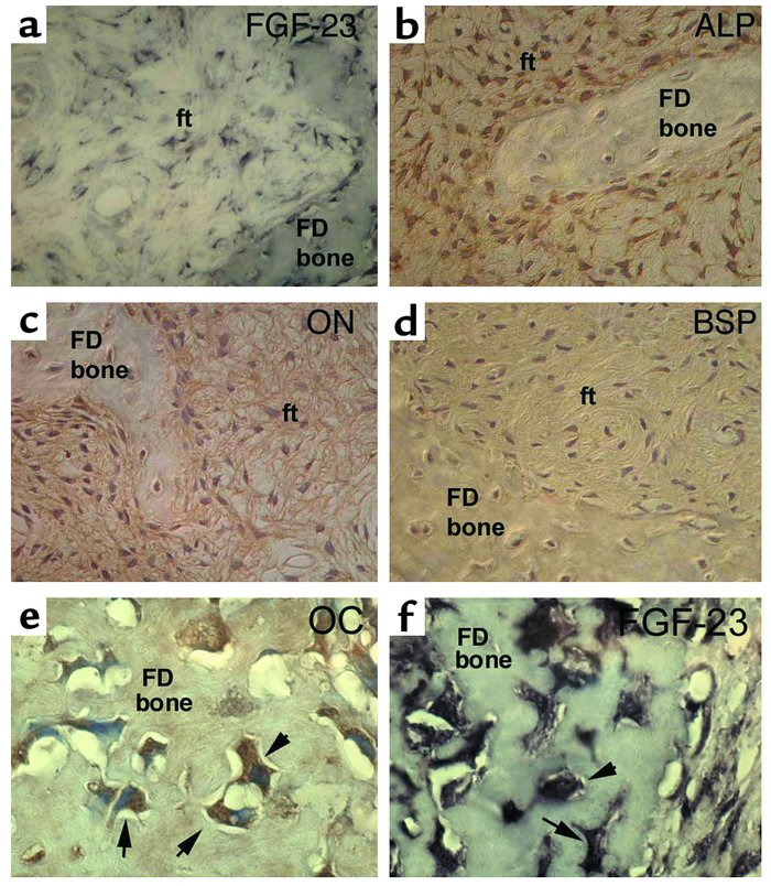 Immunohistochemical characterization of FGF-23–producing cells in FD. St...