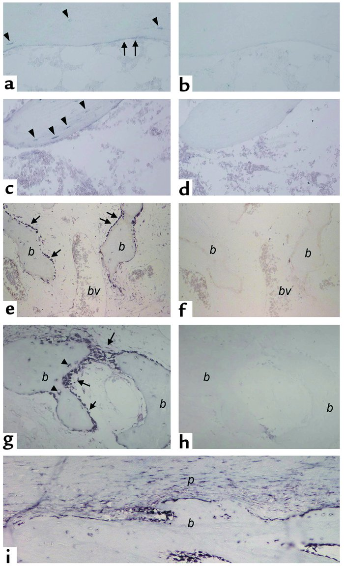 In situ hybridization analysis of FGF-23 expression in normal bone. (a–d...