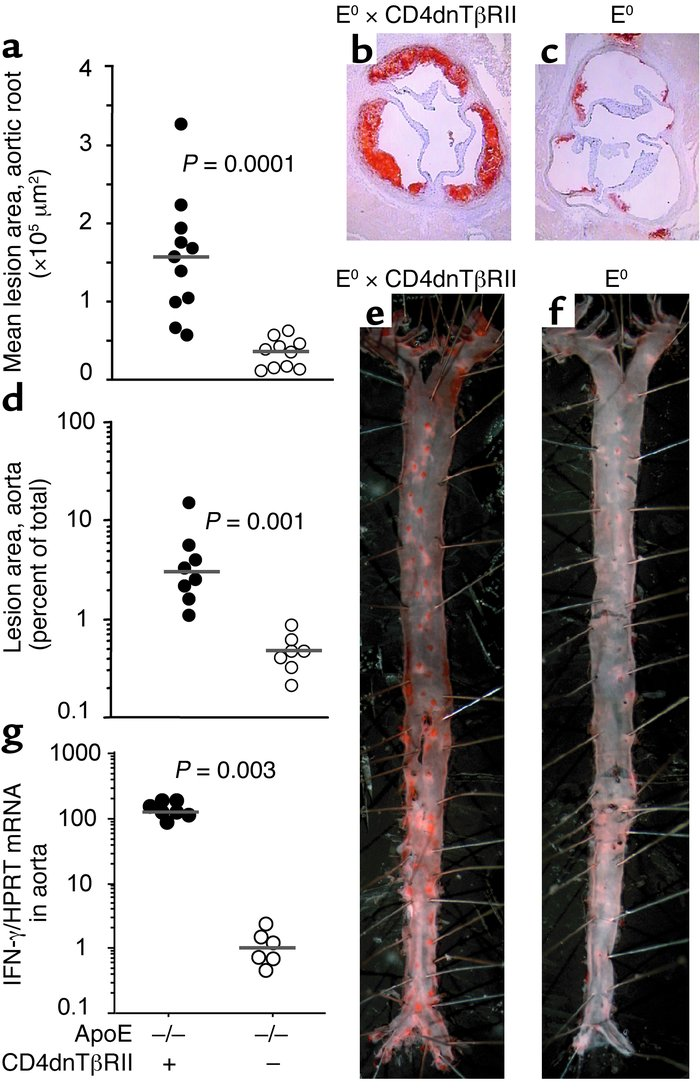 Abrogation of TGF-β signaling in T cells increases atherosclerosis and I...