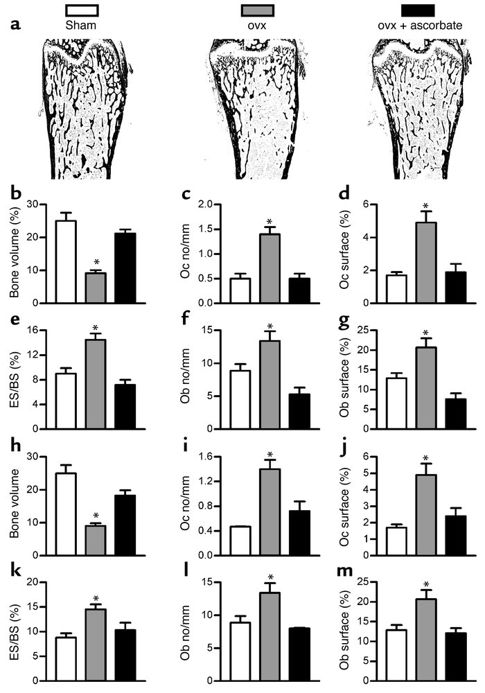 Ascorbate and NAC prevent bone loss in ovariectomized mice. (a–g) Ascorb...