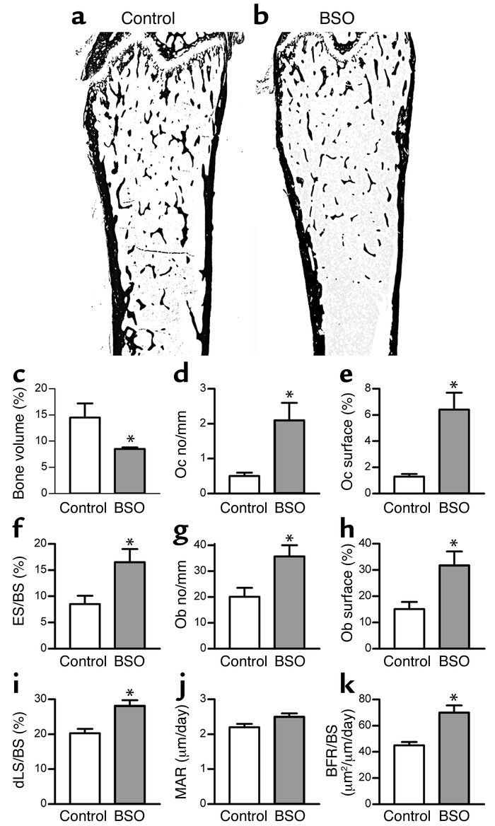 BSO induces bone loss in mice. (a and b) Representative sections of femo...
