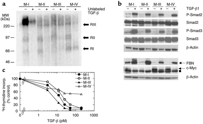 TGF-β receptor expression and responsiveness in the four human breast ep...