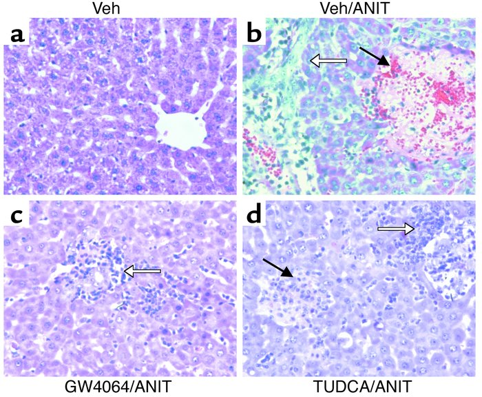 Protection against ANIT-induced necrosis by GW4064. Rats (n = 6–8) were ...