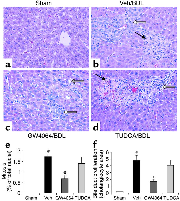 Protection against bile duct ligation–induced necrosis, mitosis, and bil...