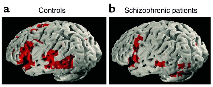 Generic brain-activation maps for (a) control group and (b) patients wit...