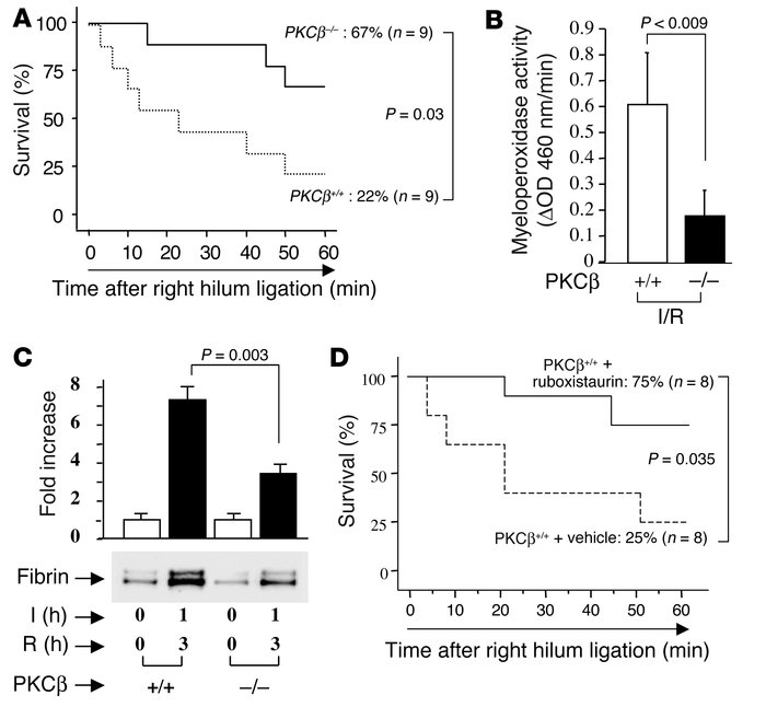 Murine model of lung ischemia/reperfusion (I/R): effect of PKCβ. (A and ...