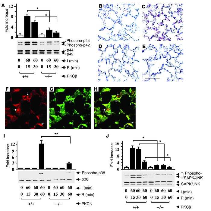 Ischemia/reperfusion-mediated activation of MAPKs in the lung. PKCβ+/+ a...