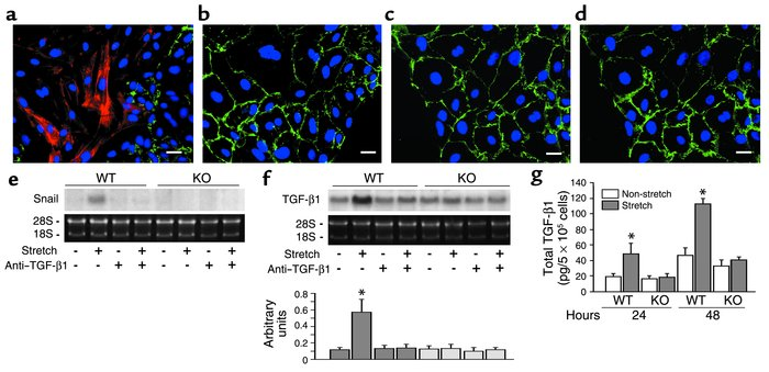 Epithelial-mesenchymal transition and TGF-β1 upregulation in an environm...