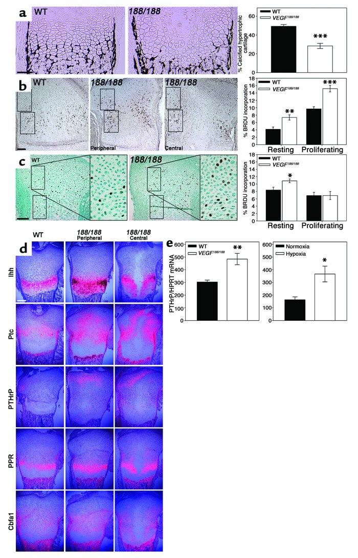 Altered chondrocyte development in VEGF188/188 peripheral growth plates....