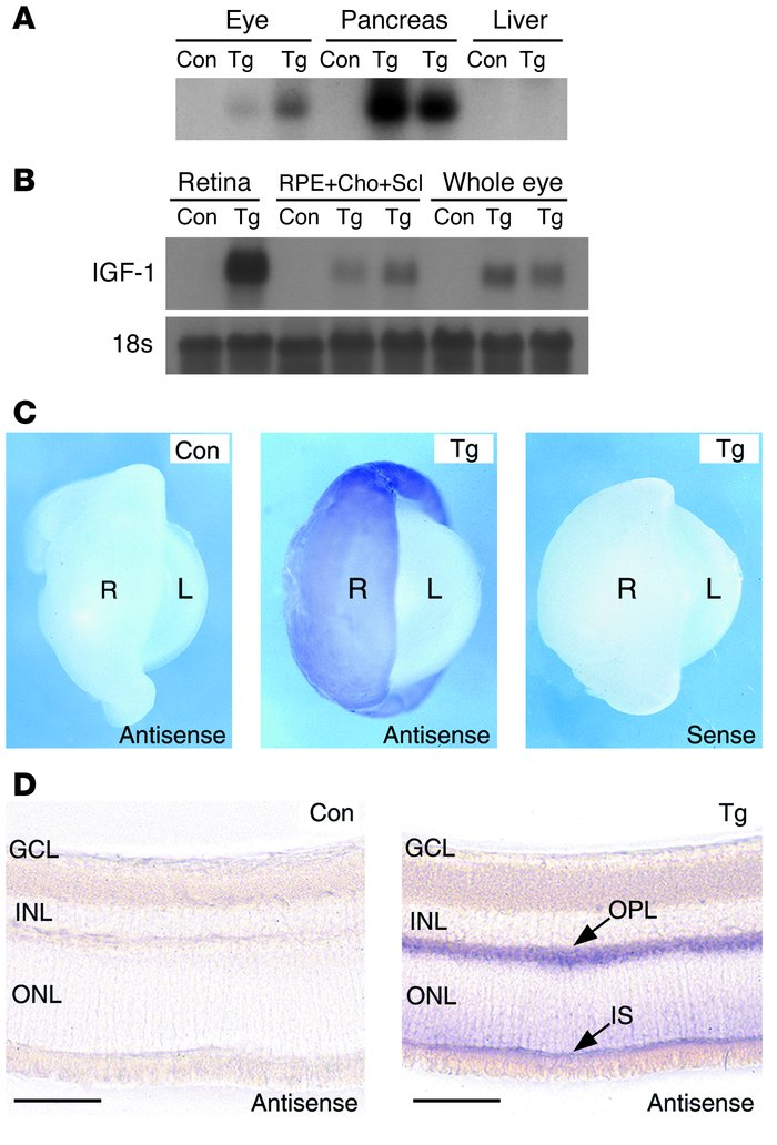 IGF-1 is overexpressed in eyes of transgenic mice. (A) RT-PCR confirmed ...