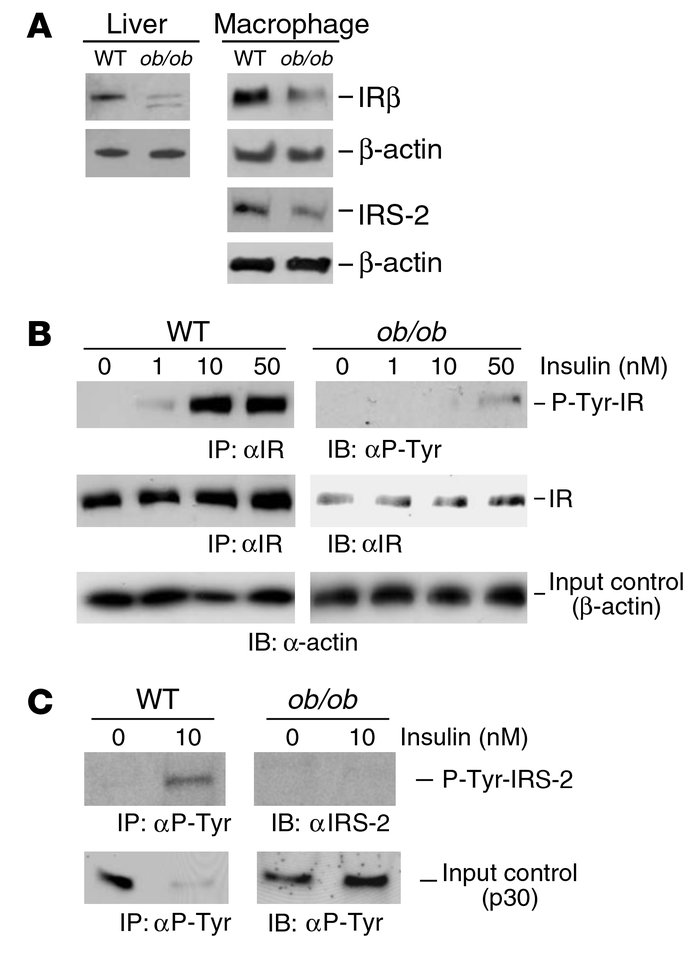 The expression and signaling of insulin receptor is downregulated in ob/...