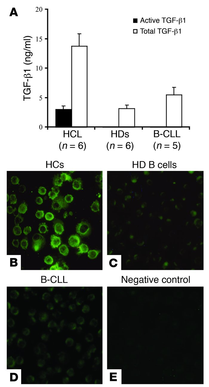 TGF-β1 production by PBMCs and intracellular localization in normal B ce...
