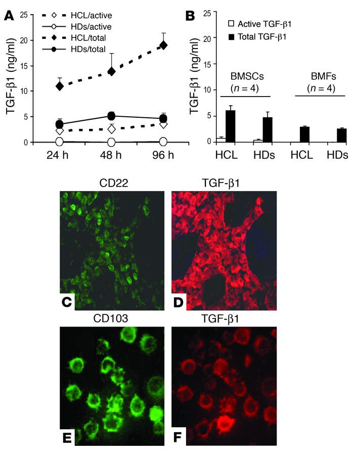 Secreted and intracellular TGF-β1 in BM cells. (A) BMMCs of HCL patients...