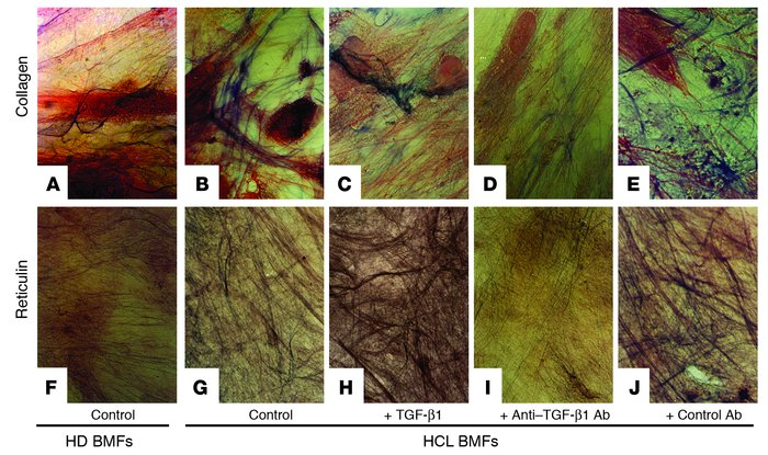 In vitro production of collagen and reticulin fibers by BMFs and the eff...