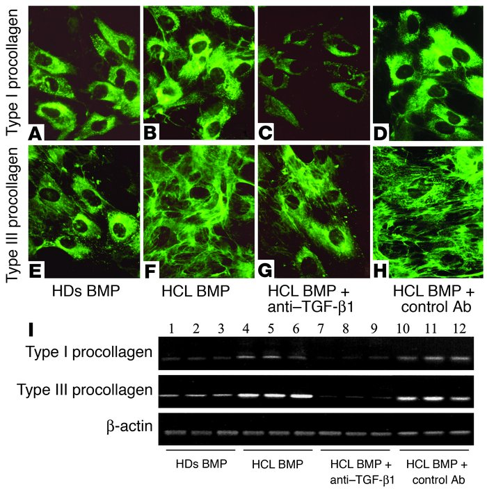 Induction of type I and type III procollagen synthesis by BMP of HCL pat...