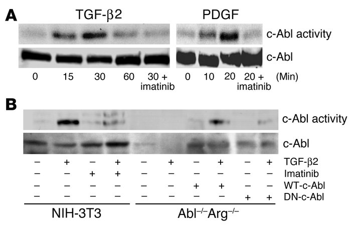 TGF-β2 stimulates c-Abl kinase activity. (A) NIH-3T3 fibroblasts were gr...