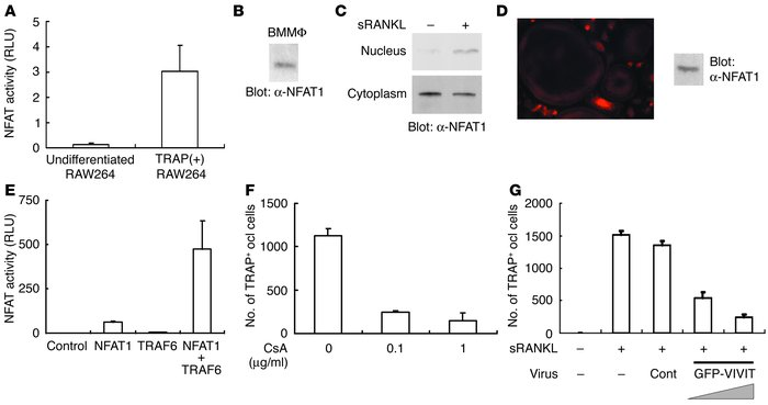 Activation of NFAT1 by RANKL signals and requirement of NFAT for osteocl...