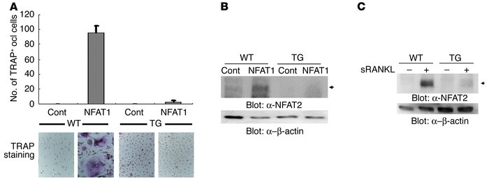 Impairment of osteoclastogenesis and NFAT2 induction by NFAT1 overexpres...