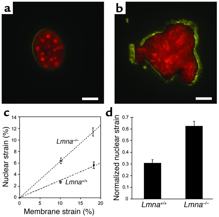 Nuclear mechanics is impaired in lamin A/C–deficient cells. (a) Nucleus ...