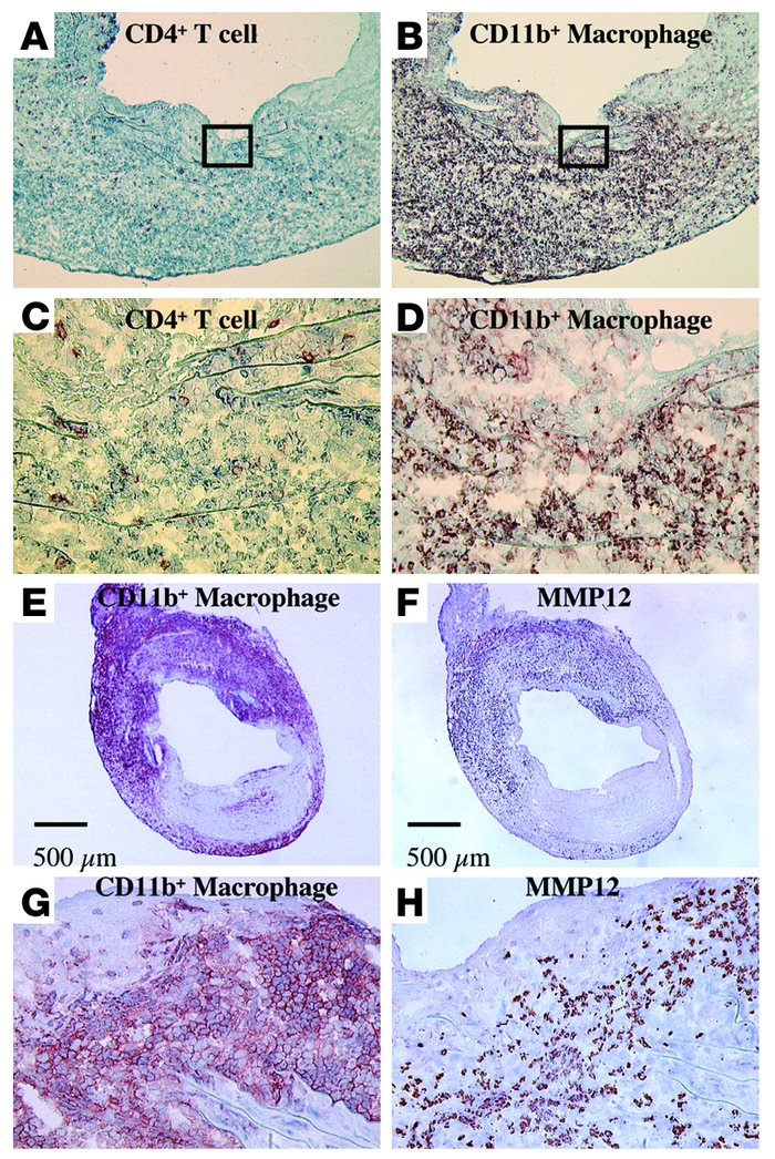 Representative immunohistochemistry of CD4+ (A and C) and CD11b+ (B and ...
