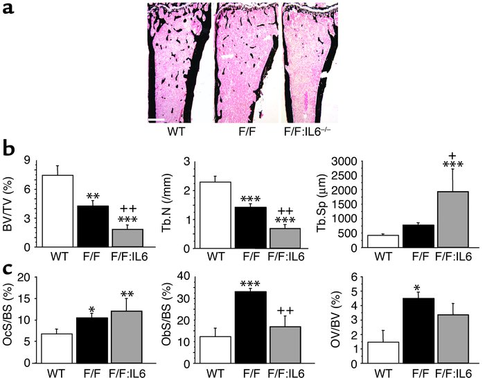 IL-6 contributes to the high level of bone formation in gp130Y757F/Y757F...
