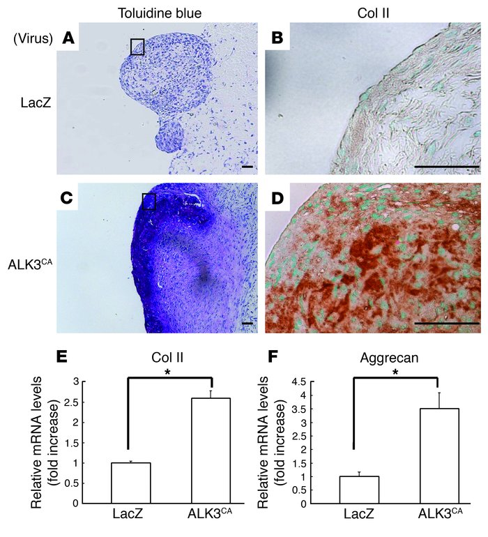 ALK3CA-transduced SFs form cartilage matrix in vivo. (A–D) Three weeks a...