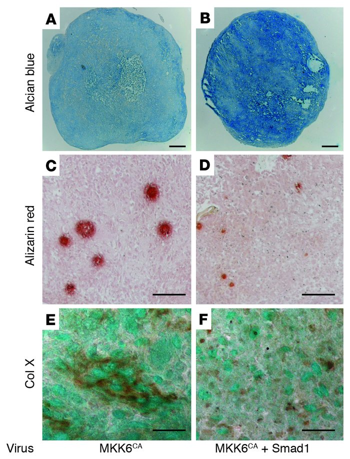 Induction of Alizarin red staining and type X collagen in MKK6-transduce...