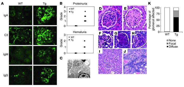 Dominant IgA deposition and abnormal UA in Tg mice. (A) Immunofluorescen...