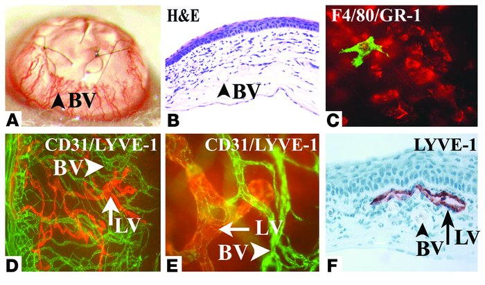 Concomitant induction of HA and lymphangiogenesis in inflammatory cornea...