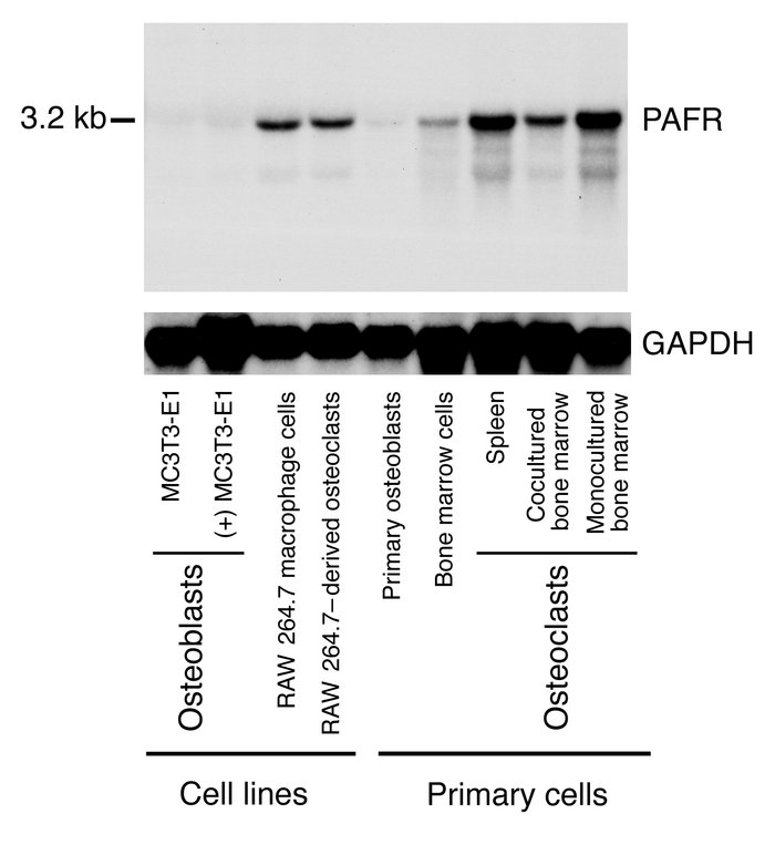 Northern blot analysis of PAFR mRNA in bone cells. MC3T3-E1 cells and pr...