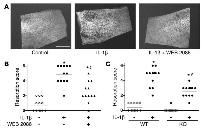 Effect of PAFR on osteoclastic resorption stimulated by IL-1β. (A) Radio...