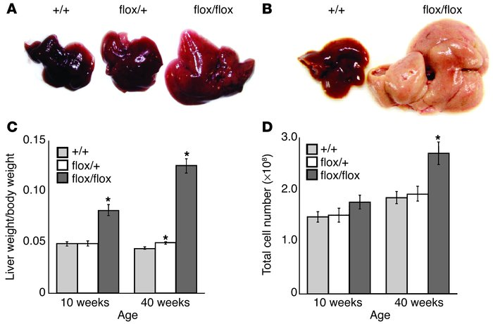 Liver anomalies in AlbCrePtenflox/flox mice. (A and B) Macroscopic analy...