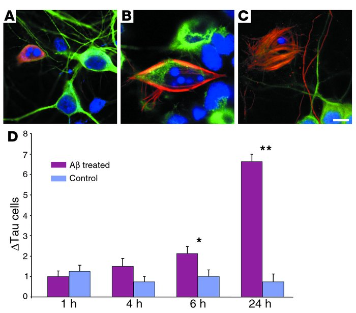 Treatment of cortical neurons with Aβ leads to increased ΔTau immunoreac...