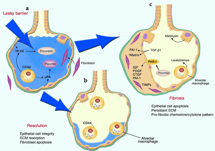 Determinants of lung response to breakdown in epithelial barrier functio...