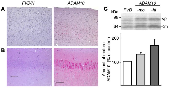 Characterization of ADAM10 transgenic mice. Immunohistochemical detectio...