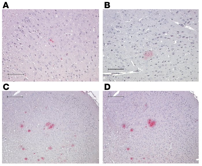 Analysis of amyloid deposits in brains from 17- to 19-month-old double-t...