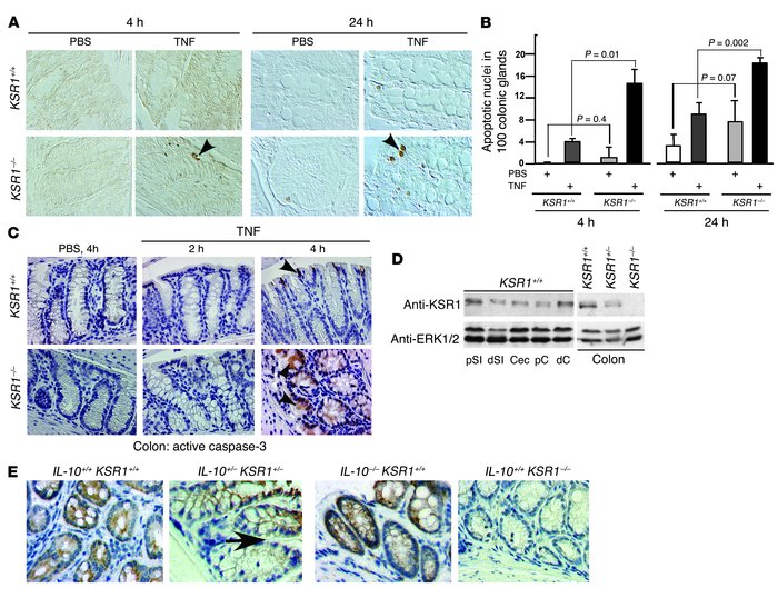 TNF induces apoptosis in KSR1–/– mouse colon epithelium in vivo. Mice we...