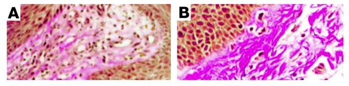 Skin remodeling in AD. Van Gieson staining (original magnification, ×400...
