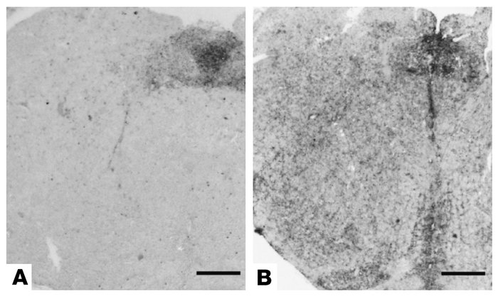 PET blotting of preclinical cerebral PrPSc deposition in the brain stem....