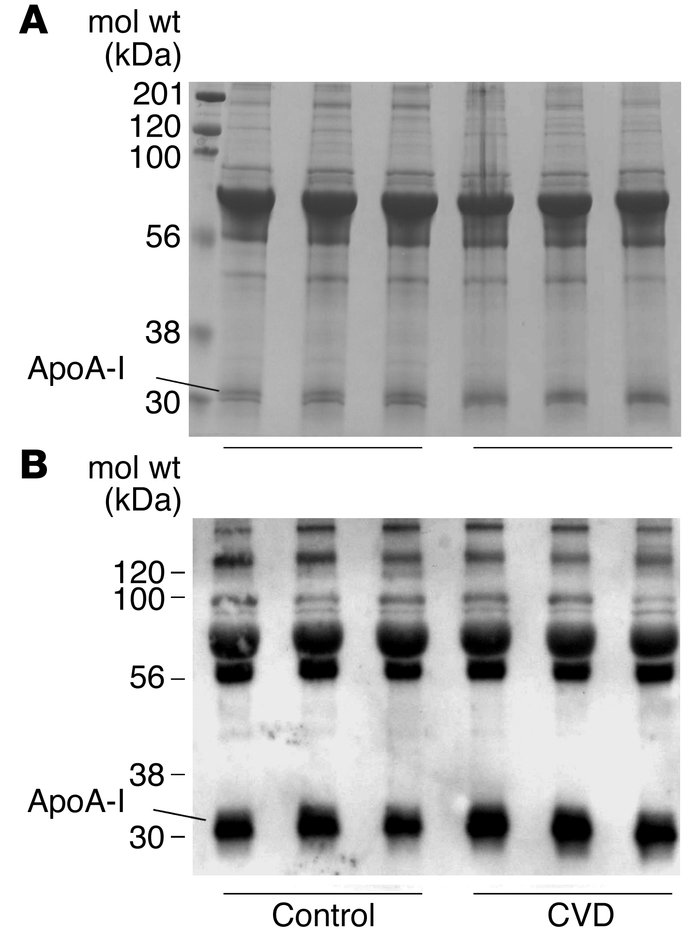 ApoA-I is a preferred target for nitration in serum. Serum samples (25 μ...