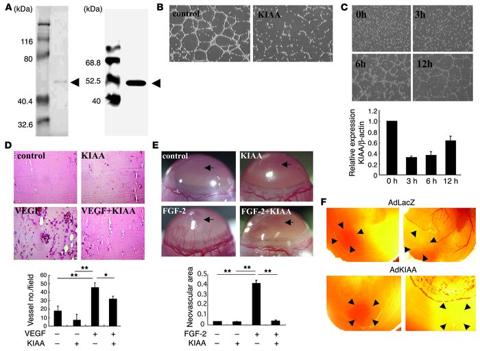 KIAA1036 inhibits angiogenesis. (A) Preparation of KIAA1036 protein. SDS...