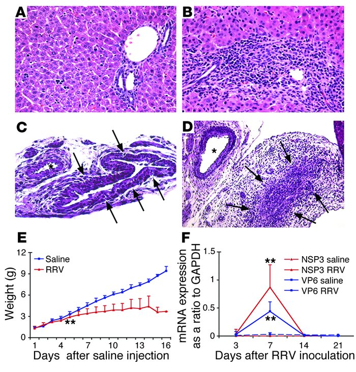 RRV infection induces biliary inflammation and growth failure in neonata...