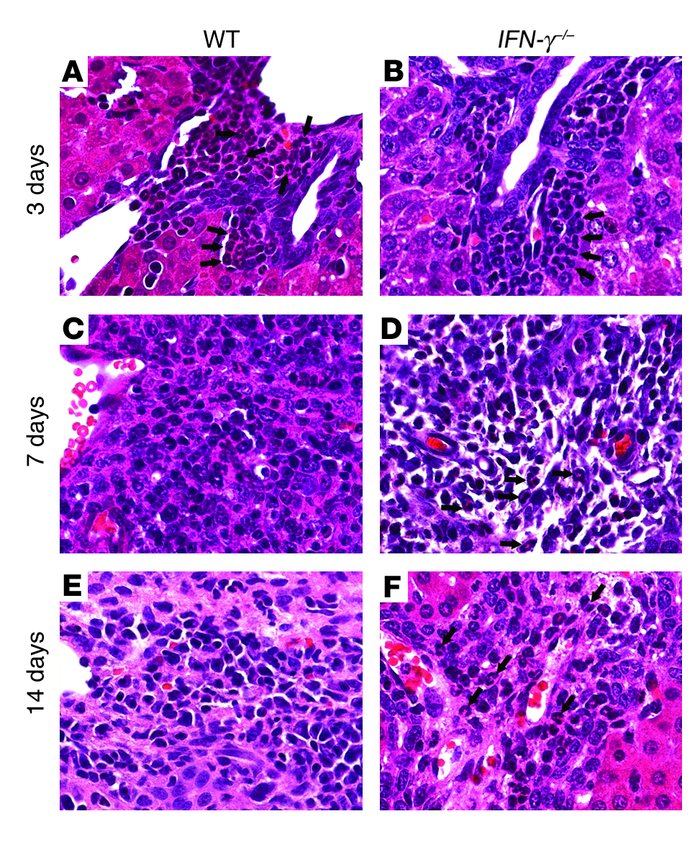 Persistent infiltration of portal space by neutrophils in IFN-γ–/– mice....