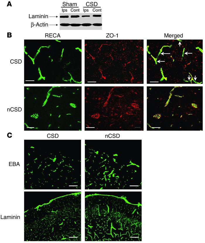 CSD altered the immunostaining of laminin, ZO-1, and EBA within the bloo...