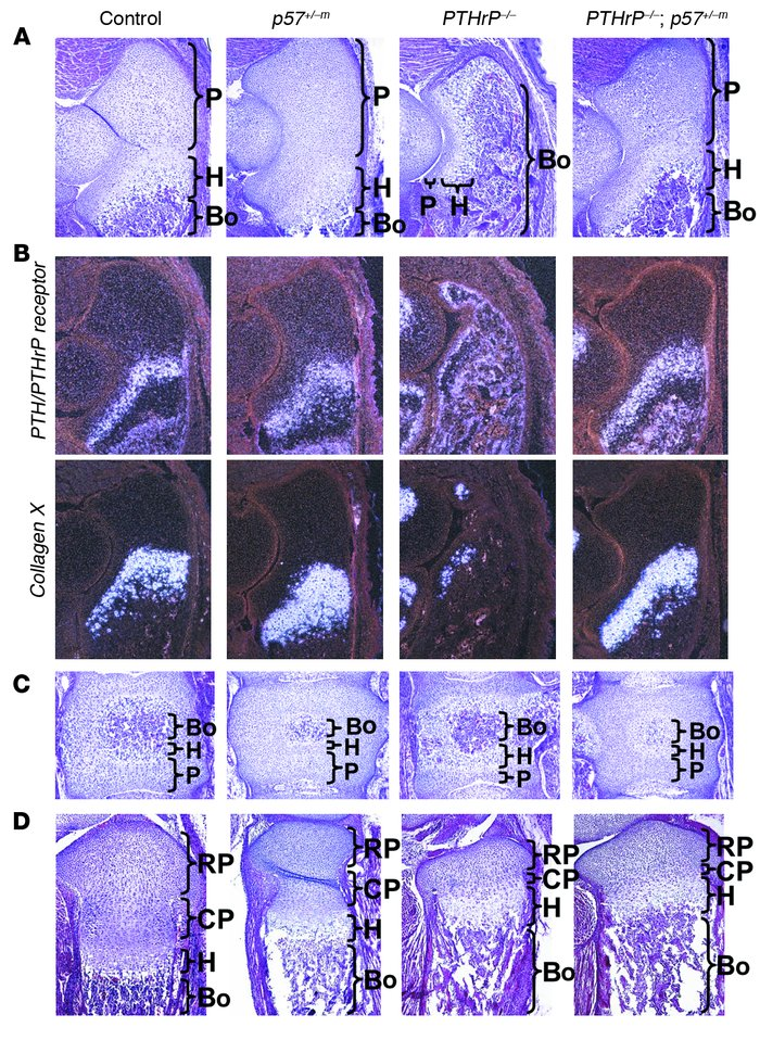 Normalization of PTHrP-null morphology by removal of p57. (A_D) Sections...